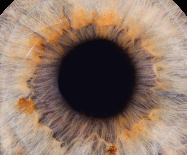 Iris-Fotografie